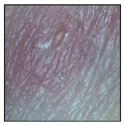 За неделю до месячных коричневые выделения болит грудь