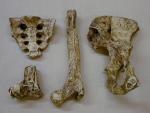 Новое о болезнях кости