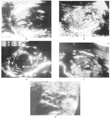 Беременность после порока развития плода