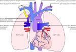 Новый способ сохранения сердца вне организма