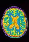 Нейроны забывчивости