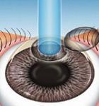Новые сведения об операции по улучшению зрения