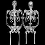 Новое о раке костей