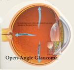 Обнаружен ген, вызывающий глаукому