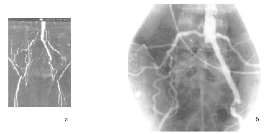Окклюзия магистральных артерий