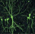 Дифференцировку нейронов можно подтолкнуть in vitro