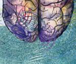 """""""Заблудившиеся"""" молекулы не дают нервным клеткам нормально функционировать"""